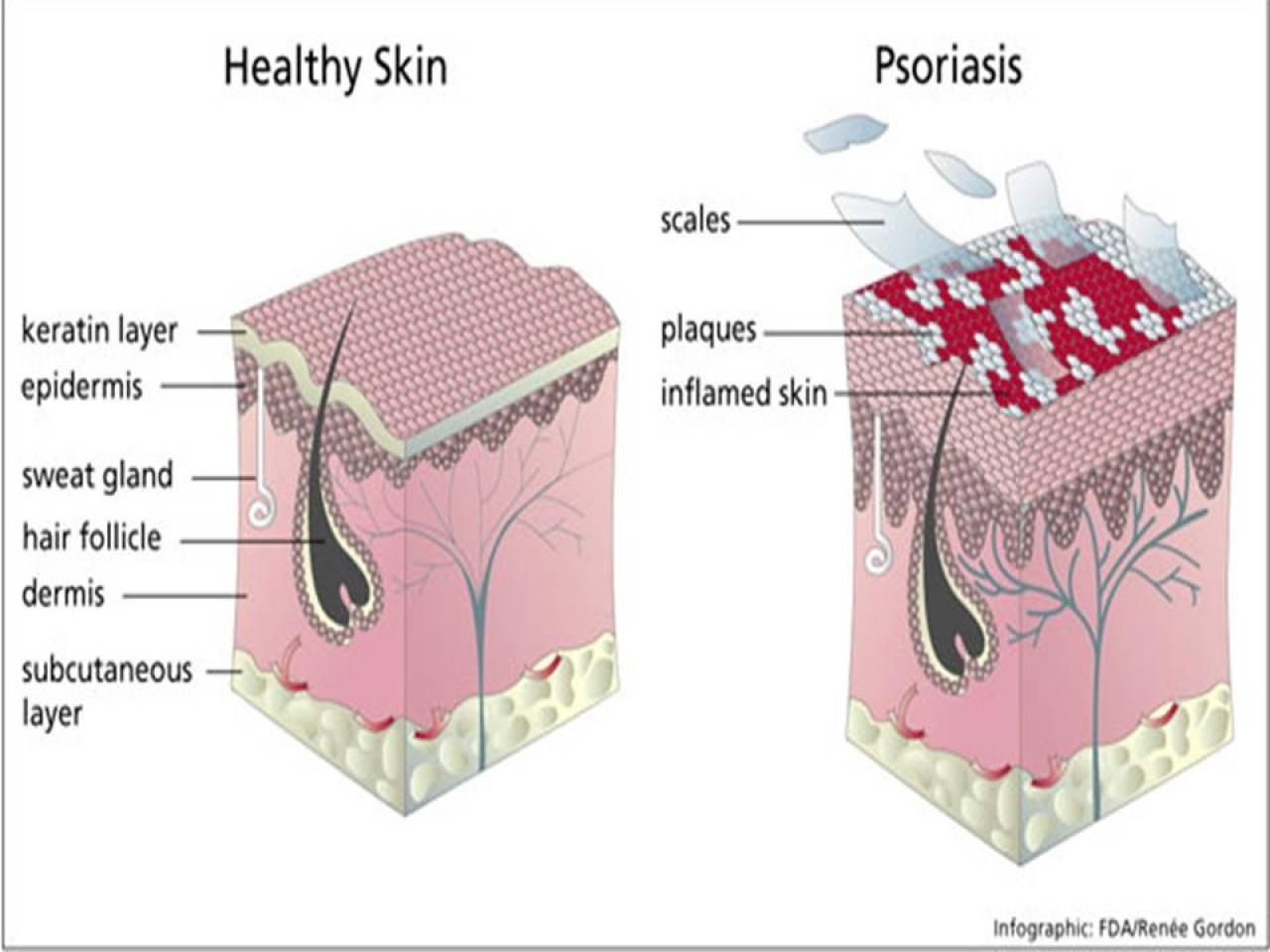 Лечение псориаза в Израиле
